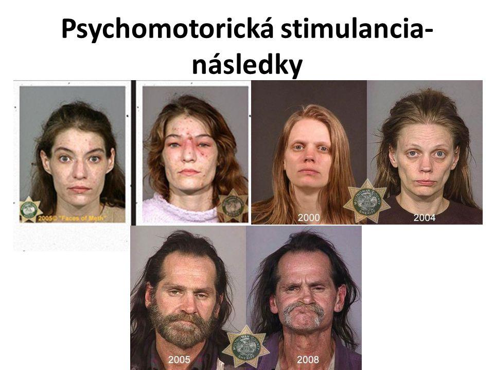 Psychomotorická stimulancia- následky