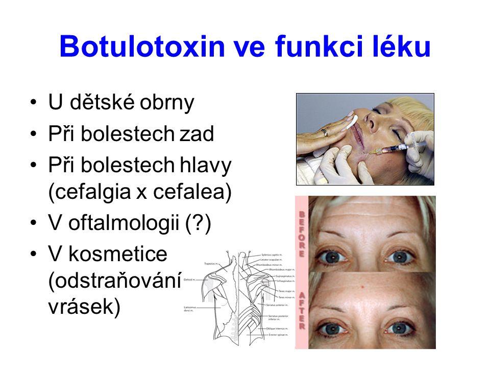 Botulotoxin ve funkci léku U dětské obrny Při bolestech zad Při bolestech hlavy (cefalgia x cefalea) V oftalmologii (?) V kosmetice (odstraňování vrás