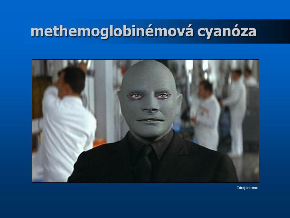 methemoglobinémová cyanóza Zdroj: internet