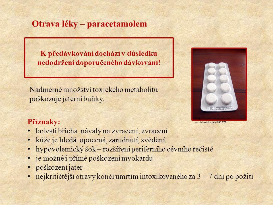 Otrava léky – paracetamolem K předávkování dochází v důsledku nedodržení doporučeného dávkování! Příznaky: bolesti břicha, návaly na zvracení, zvracen
