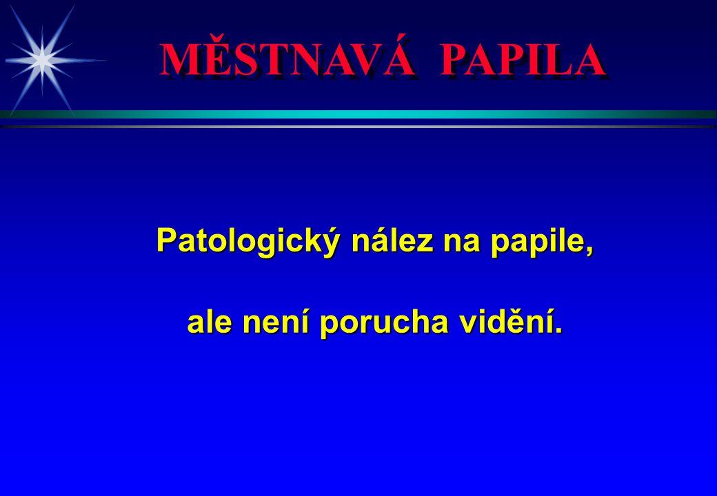 Patologický nález na papile, ale není porucha vidění.