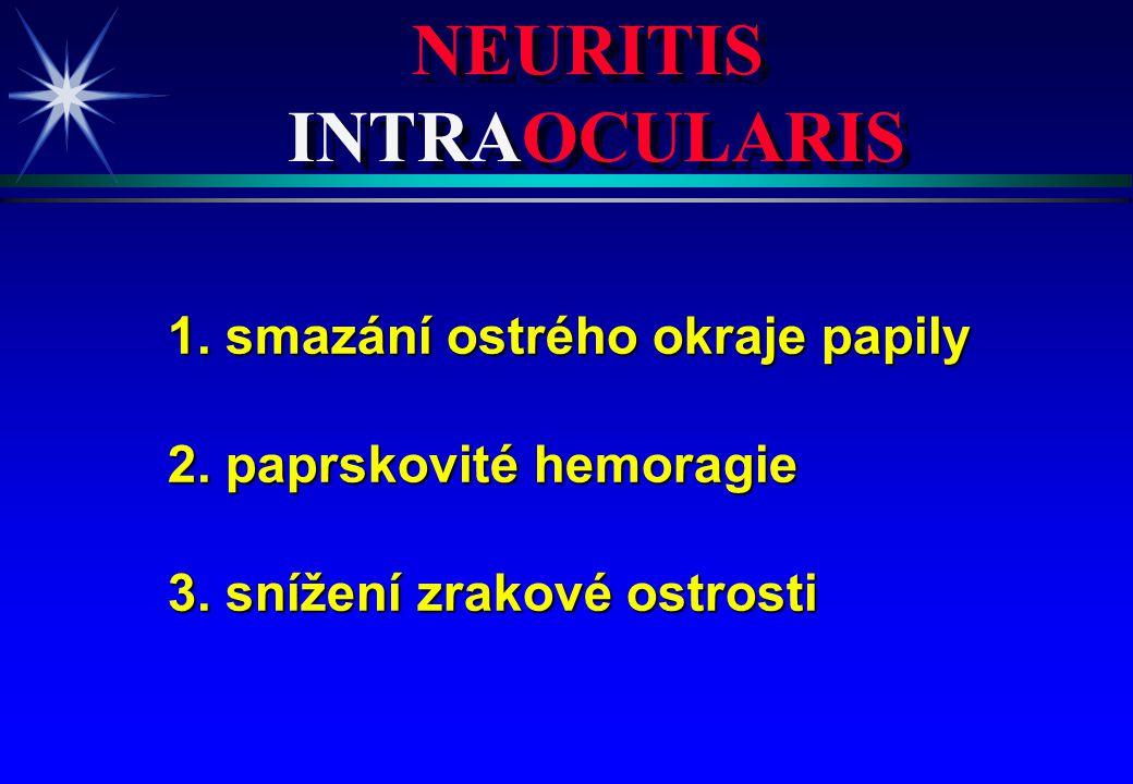 NEURITIS INTRAOCULARIS NEURITIS INTRAOCULARIS 1. smazání ostrého okraje papily 2. paprskovité hemoragie 3. snížení zrakové ostrosti