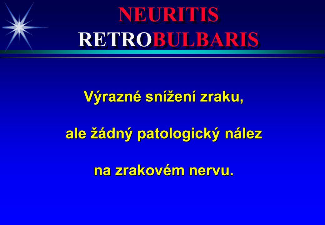 NEURITIS RETROBULBARIS Výrazné snížení zraku, ale žádný patologický nález na zrakovém nervu.