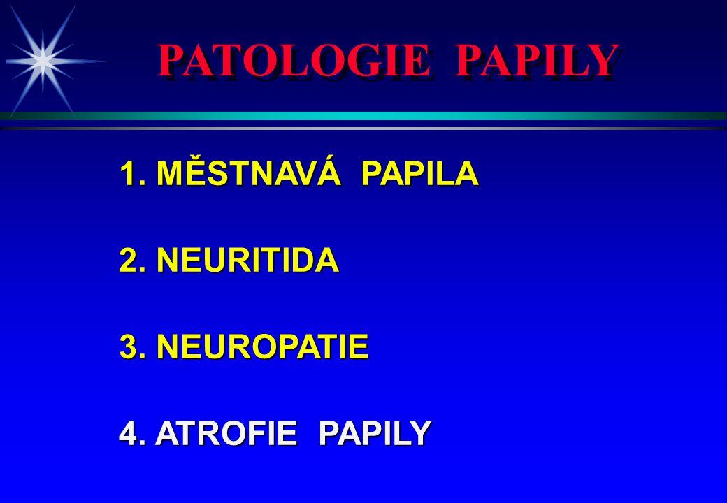 PATOLOGIE PAPILY 1. MĚSTNAVÁ PAPILA 2. NEURITIDA 3. NEUROPATIE 4. ATROFIE PAPILY