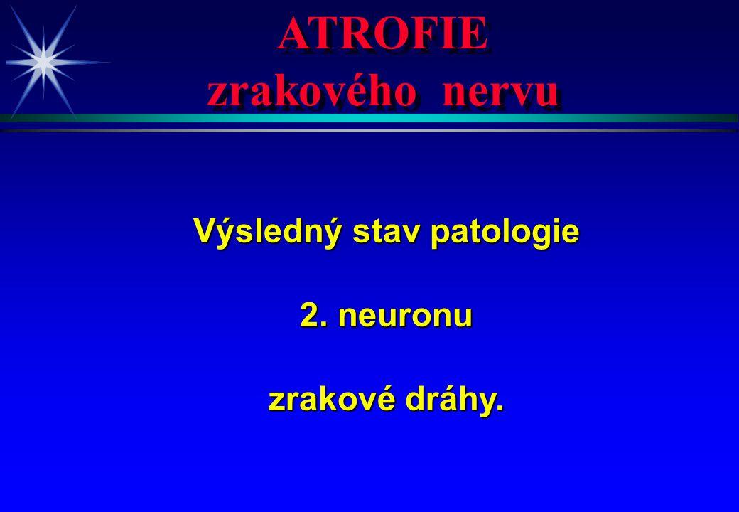 ATROFIE zrakového nervu ATROFIE zrakového nervu Výsledný stav patologie 2. neuronu zrakové dráhy.