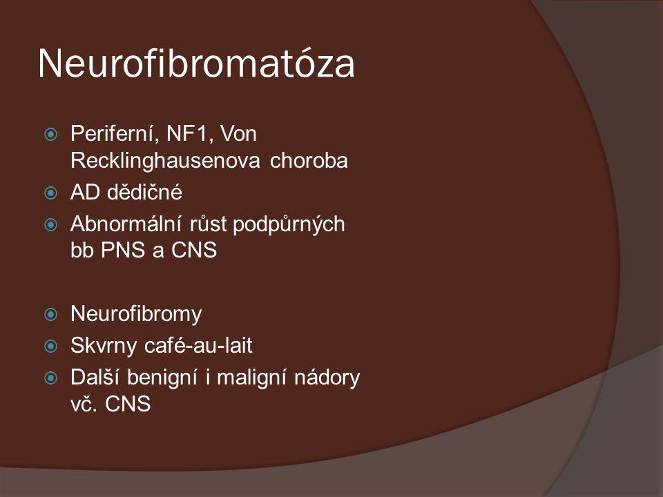 Neurofibromatóza  Periferní, NF1, Von Recklinghausenova choroba  AD dědičné  Abnormální růst podpůrných bb PNS a CNS  Neurofibromy  Skvrny café-a