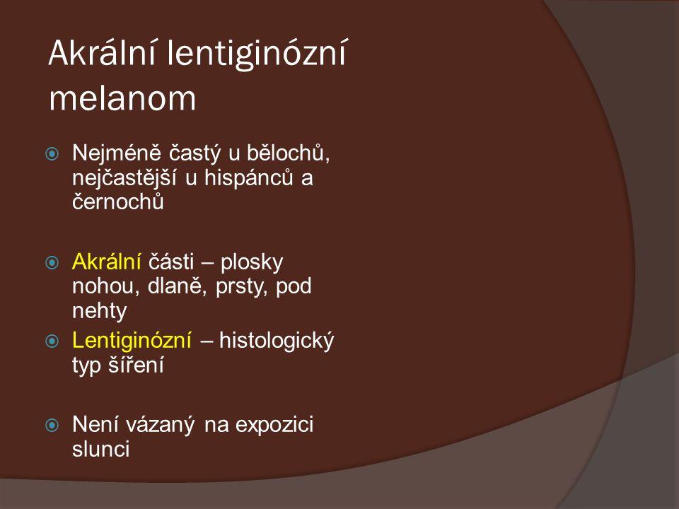 Akrální lentiginózní melanom  Nejméně častý u bělochů, nejčastější u hispánců a černochů  Akrální části – plosky nohou, dlaně, prsty, pod nehty  Le