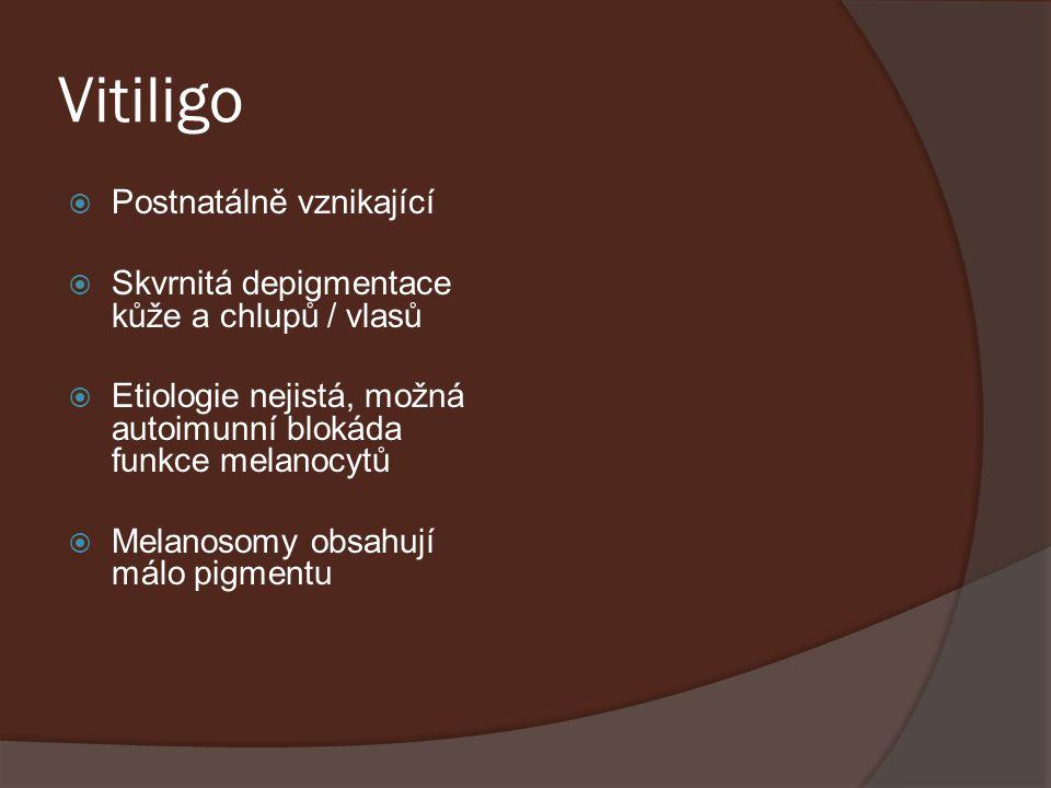 Vitiligo  Postnatálně vznikající  Skvrnitá depigmentace kůže a chlupů / vlasů  Etiologie nejistá, možná autoimunní blokáda funkce melanocytů  Mela