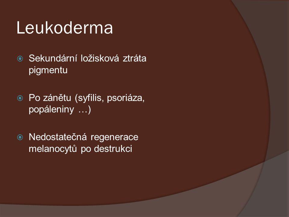 Leukoderma  Sekundární ložisková ztráta pigmentu  Po zánětu (syfilis, psoriáza, popáleniny …)  Nedostatečná regenerace melanocytů po destrukci