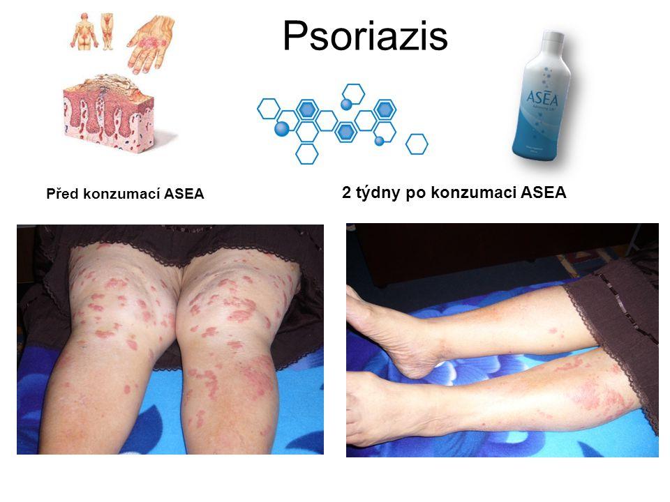 Psoriazis Před konzumací ASEA 2 týdny po konzumaci ASEA