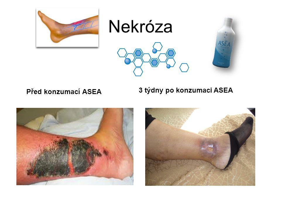 Nekróza Před konzumací ASEA 3 týdny po konzumaci ASEA
