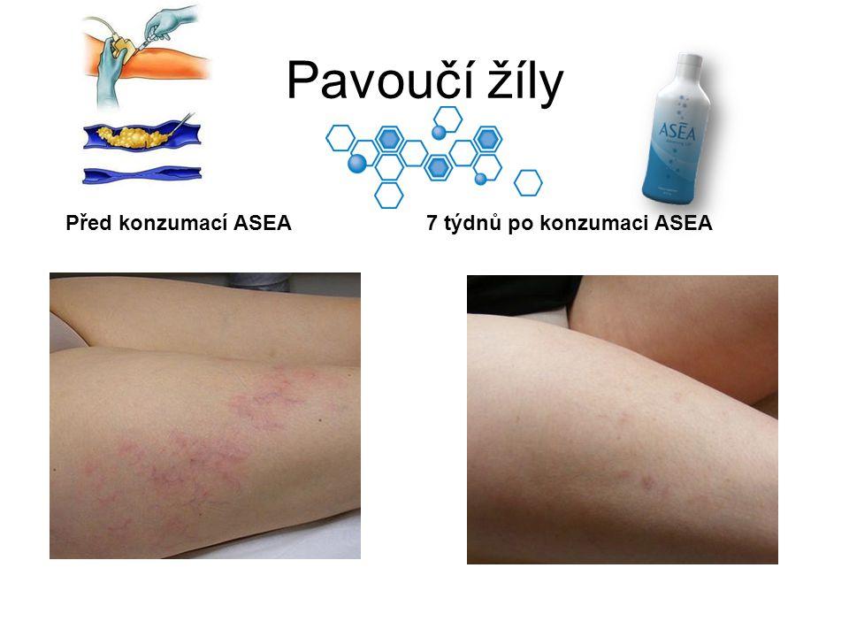 Pavoučí žíly Před konzumací ASEA7 týdnů po konzumaci ASEA