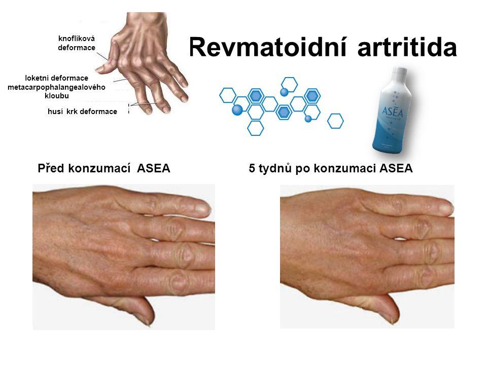 Revmatoidní artritida Před konzumací ASEA5 tydnů po konzumaci ASEA knoflíková deformace loketní deformace metacarpophalangealového kloubu husí krk def
