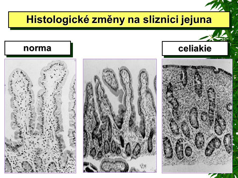 normanorma celiakieceliakie Histologické změny na sliznici jejuna