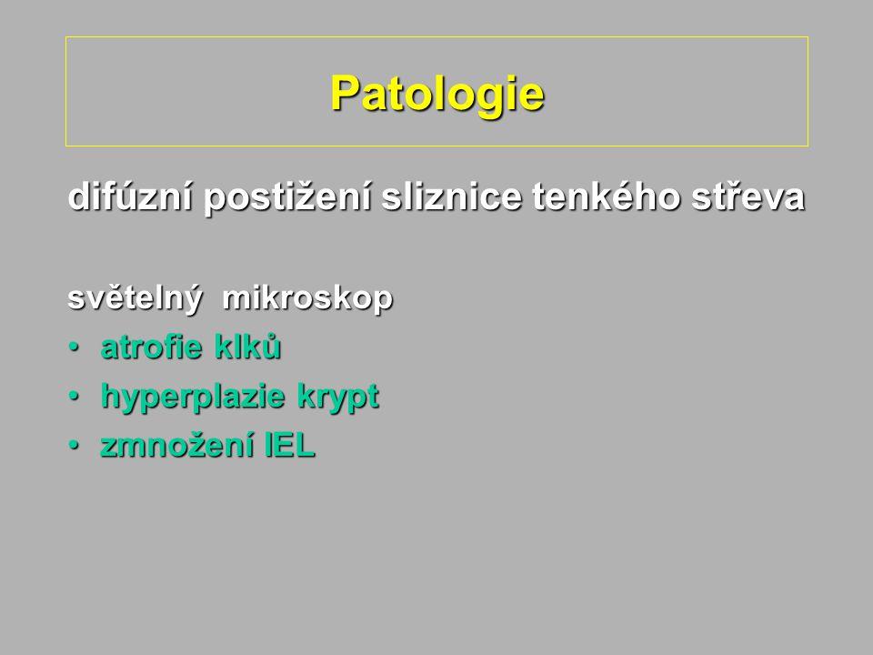 Patologie difúzní postižení sliznice tenkého střeva světelný mikroskop atrofie klkůatrofie klků hyperplazie krypthyperplazie krypt zmnožení IELzmnožen