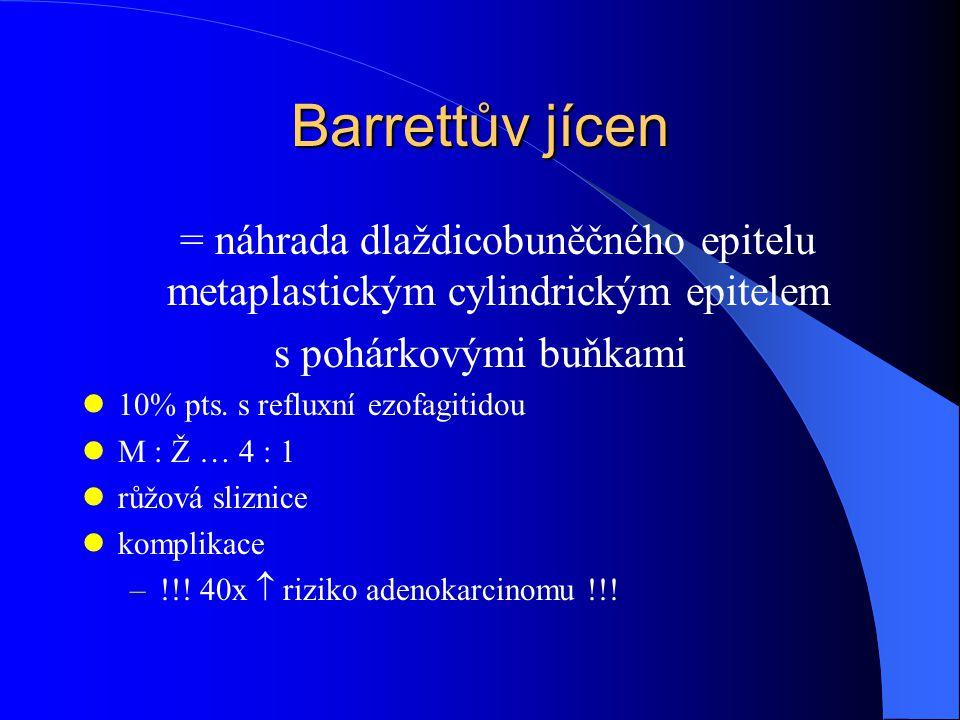 Barrettův jícen = náhrada dlaždicobuněčného epitelu metaplastickým cylindrickým epitelem s pohárkovými buňkami 10% pts.