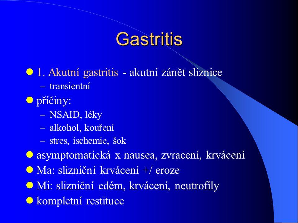 Gastritis 1.