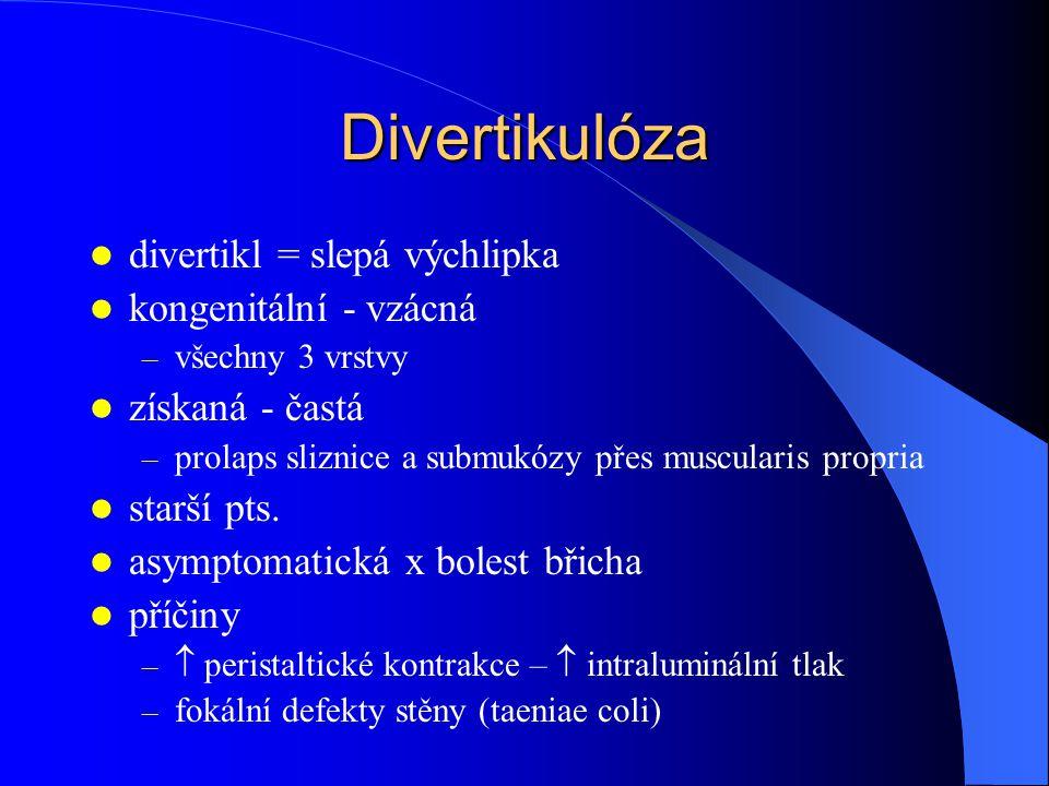 Divertikulóza divertikl = slepá výchlipka kongenitální - vzácná – všechny 3 vrstvy získaná - častá – prolaps sliznice a submukózy přes muscularis propria starší pts.