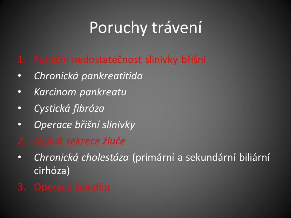 Poruchy trávení 1.Funkční nedostatečnost slinivky břišní Chronická pankreatitida Karcinom pankreatu Cystická fibróza Operace břišní slinivky 2.Deficit