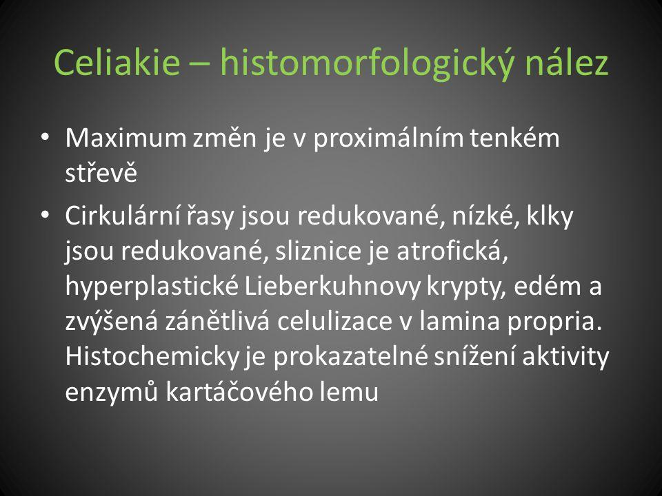 Celiakie – histomorfologický nález Maximum změn je v proximálním tenkém střevě Cirkulární řasy jsou redukované, nízké, klky jsou redukované, sliznice