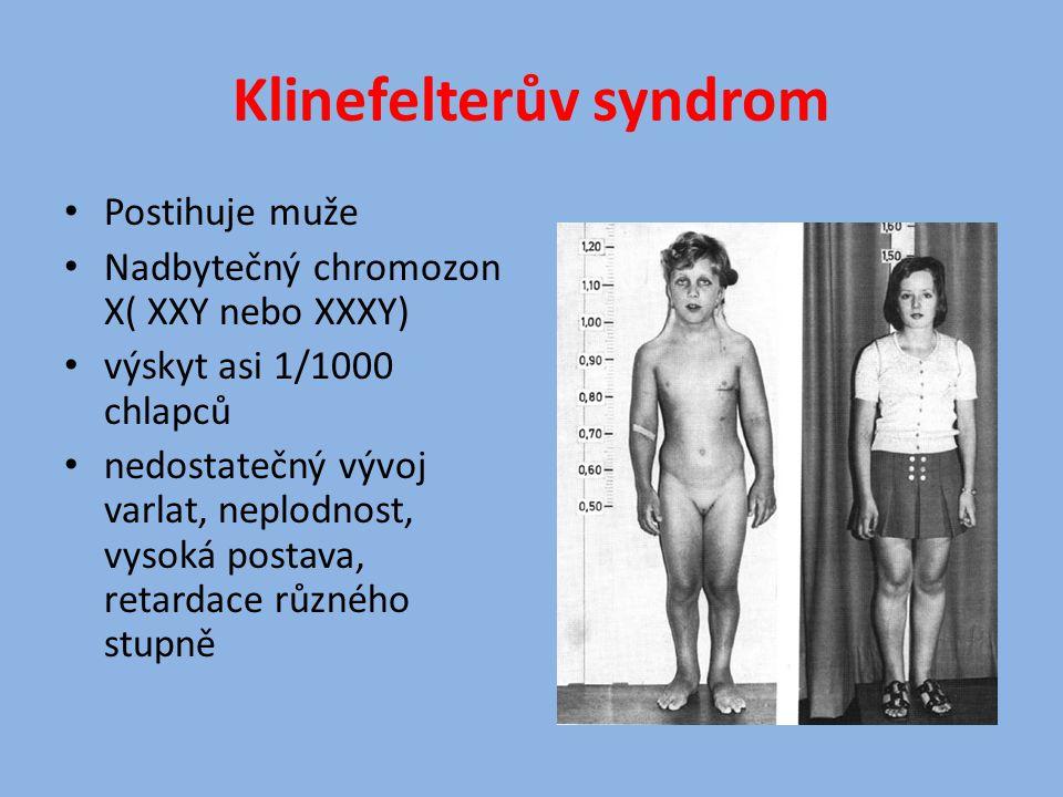 Klinefelterův syndrom Postihuje muže Nadbytečný chromozon X( XXY nebo XXXY) výskyt asi 1/1000 chlapců nedostatečný vývoj varlat, neplodnost, vysoká po