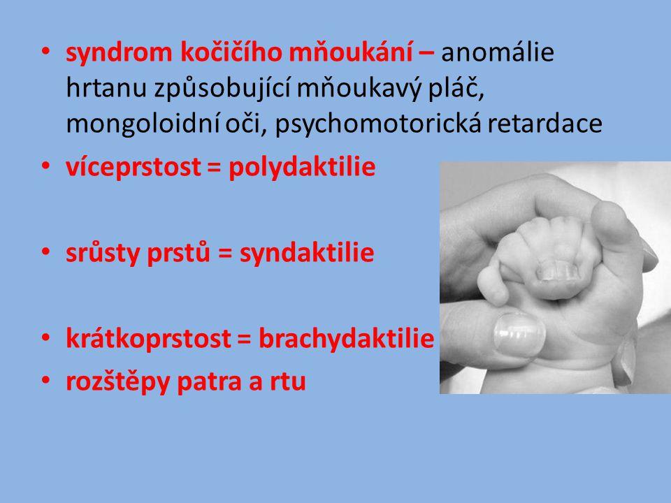 syndrom kočičího mňoukání – anomálie hrtanu způsobující mňoukavý pláč, mongoloidní oči, psychomotorická retardace víceprstost = polydaktilie srůsty pr