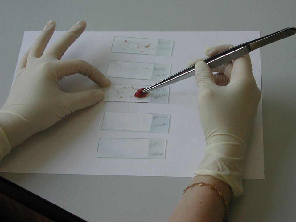 Diagnostický souhrn 1.Iniciály, pohlaví, věk FCMHistologieCytologieKonečná dg.
