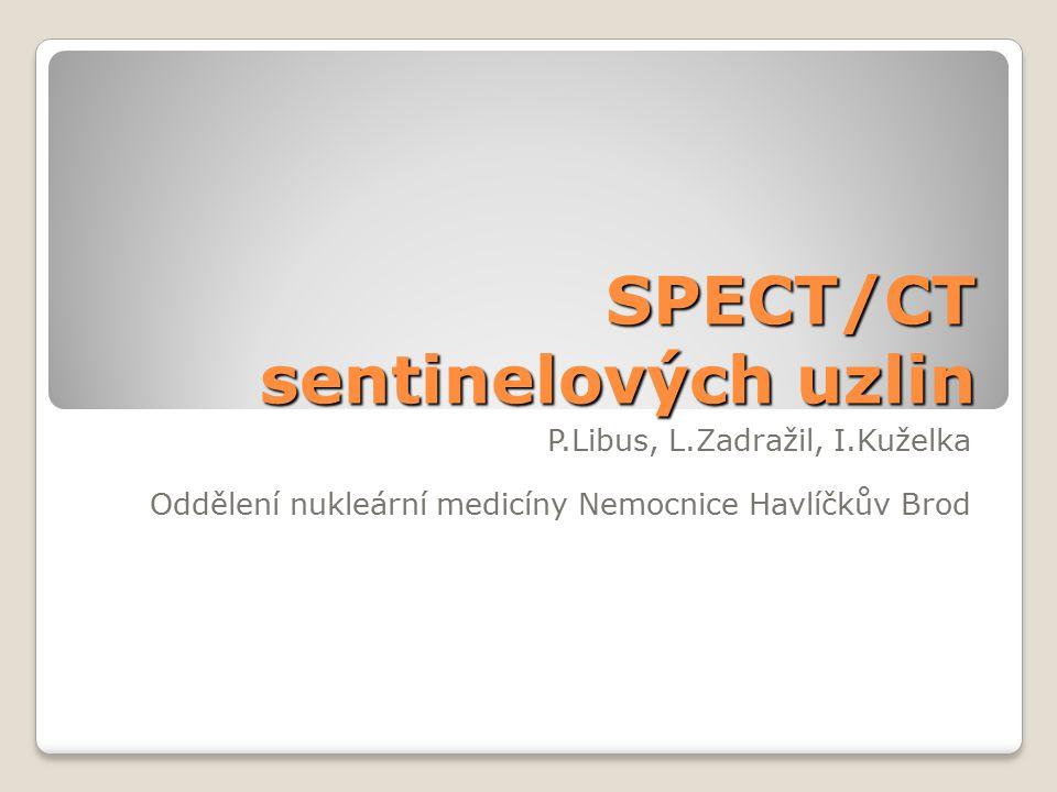 SPECT/CT sentinelových uzlin P.Libus, L.Zadražil, I.Kuželka Oddělení nukleární medicíny Nemocnice Havlíčkův Brod