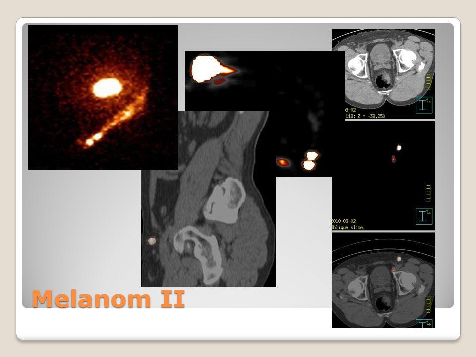 Melanom II