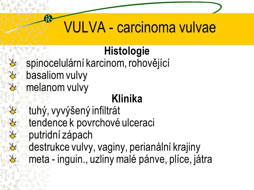 VULVA - carcinoma vulvae Histologie spinocelulární karcinom, rohovějící basaliom vulvy melanom vulvy Klinika tuhý, vyvýšený infiltrát tendence k povrc