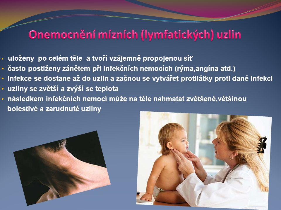 uloženy po celém těle a tvoří vzájemně propojenou síť často postiženy zánětem při infekčních nemocích (rýma,angína atd.) infekce se dostane až do uzli