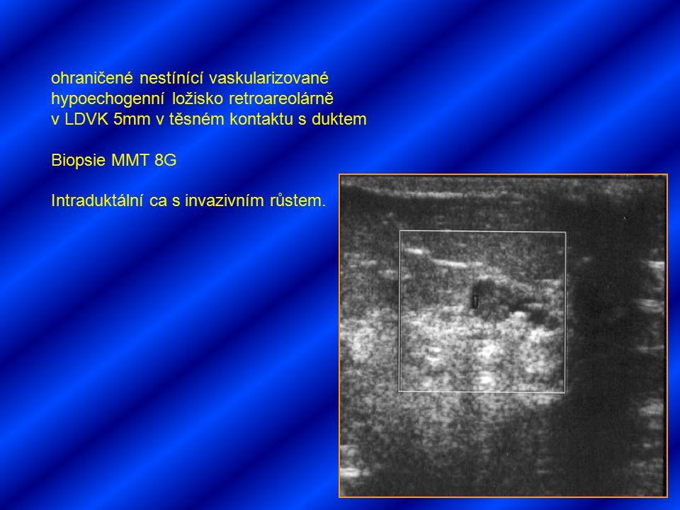 ohraničené nestínící vaskularizované hypoechogenní ložisko retroareolárně v LDVK 5mm v těsném kontaktu s duktem Biopsie MMT 8G Intraduktální ca s inva