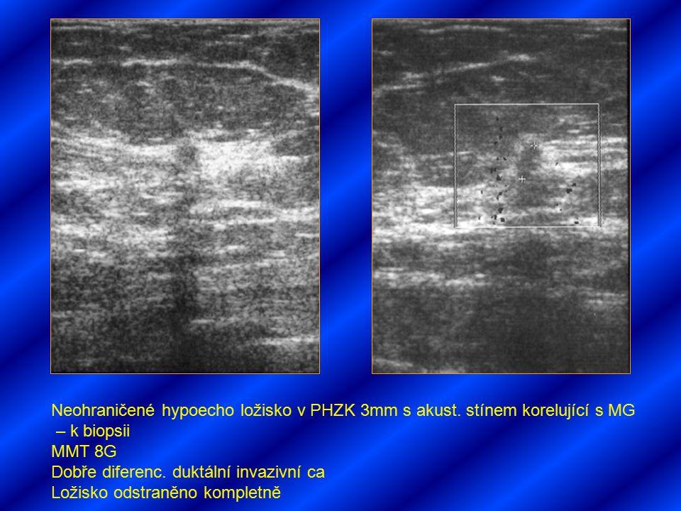 Neohraničené hypoecho ložisko v PHZK 3mm s akust. stínem korelující s MG – k biopsii MMT 8G Dobře diferenc. duktální invazivní ca Ložisko odstraněno k