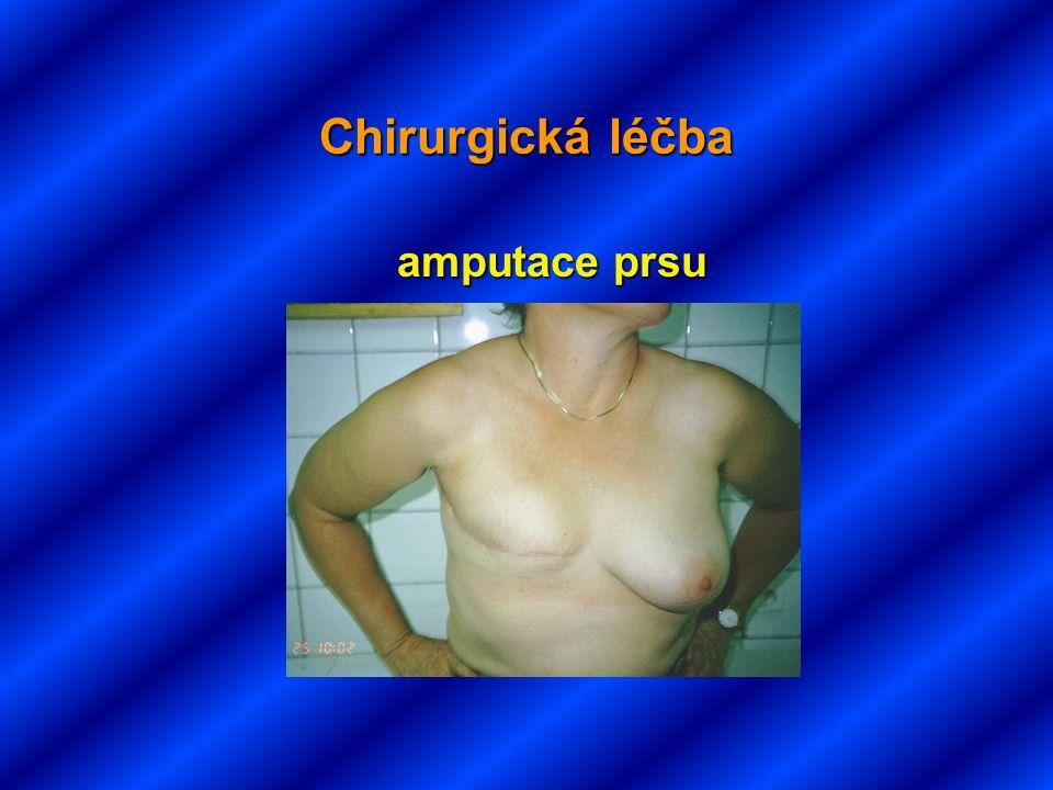 Chirurgická léčba amputace prsu amputace prsu