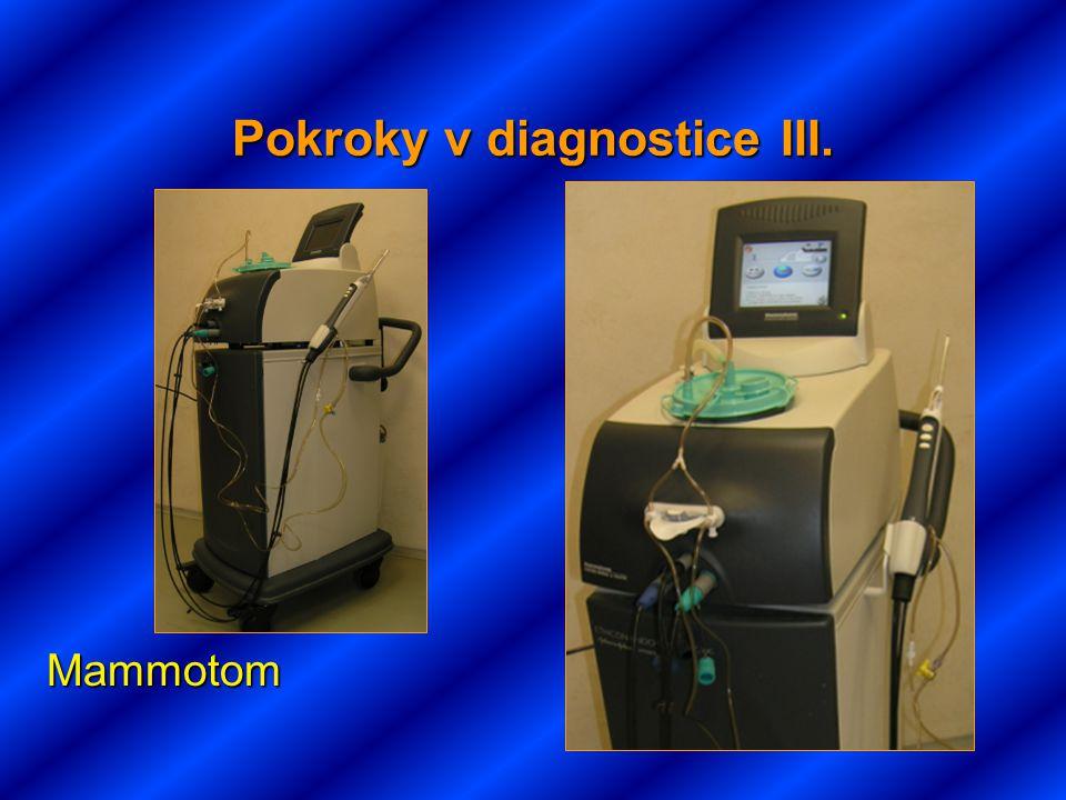 Pokroky v diagnostice III. Mammotom