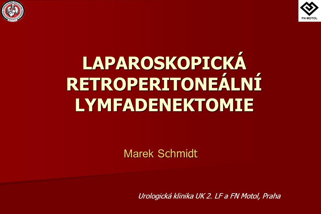Retroperitone á ln í lymfadenektomie kompletní odstranění lipolymfatické tkáně s paraortálními, parakaválními a parailickými uzlinami kompletní odstranění lipolymfatické tkáně s paraortálními, parakaválními a parailickými uzlinami rozsáhlý, dlouho trvající operační výkon, operační rána od mečíku k symfýze, manipulace se střevními kličkami rozsáhlý, dlouho trvající operační výkon, operační rána od mečíku k symfýze, manipulace se střevními kličkami komplikace komplikace  krevní ztráty, poranění velkých cév, poranění GIT  anejakulace při bilaterálním postižení paraaortálních sympatických nervových pletení a hypogastrického plexu  paralytický ileus, kýla v jizvě
