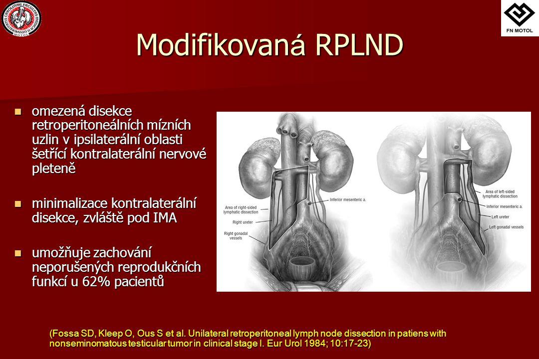 Modifikovan á RPLND omezená disekce retroperitoneálních mízních uzlin v ipsilaterální oblasti šetřící kontralaterální nervové pleteně omezená disekce retroperitoneálních mízních uzlin v ipsilaterální oblasti šetřící kontralaterální nervové pleteně minimalizace kontralaterální disekce, zvláště pod IMA minimalizace kontralaterální disekce, zvláště pod IMA umožňuje zachování neporušených reprodukčních funkcí u 62% pacientů umožňuje zachování neporušených reprodukčních funkcí u 62% pacientů (Fossa SD, Kleep O, Ous S et al.