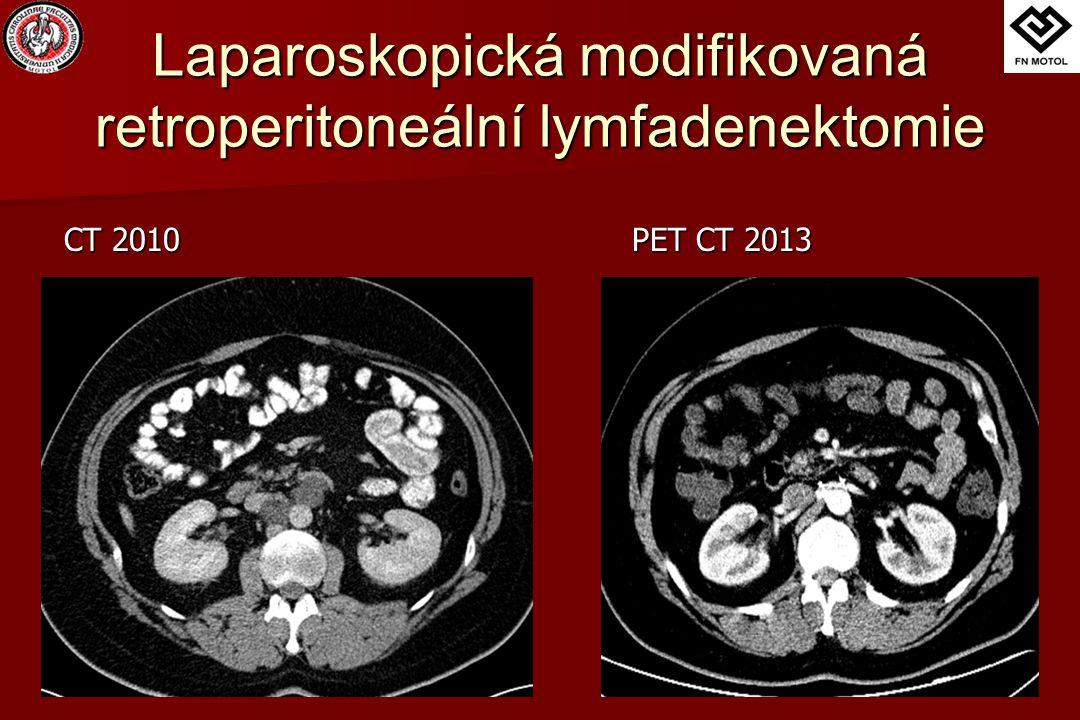 Výsledky Otevřené modifikované laparoskopické počet pacientů 2036 Ø operační čas (minuty) 192162 počet uzlin 8,218,0 hospitalizace (dny) 8,45,4 JIP (dny) 4,351,8 drenáž (dny) 5,33,4 analgetika (dny) 5,93,1 transfúze (pts) 10 antibiotika (pts) 72 antiemetika (dny) 63 NG sonda (pts) 80