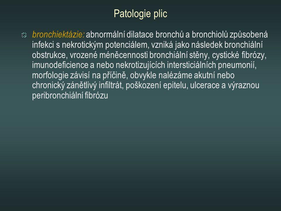 Patologie plic bronchiektázie: abnormální dilatace bronchů a bronchiolů způsobená infekci s nekrotickým potenciálem, vzniká jako následek bronchiální
