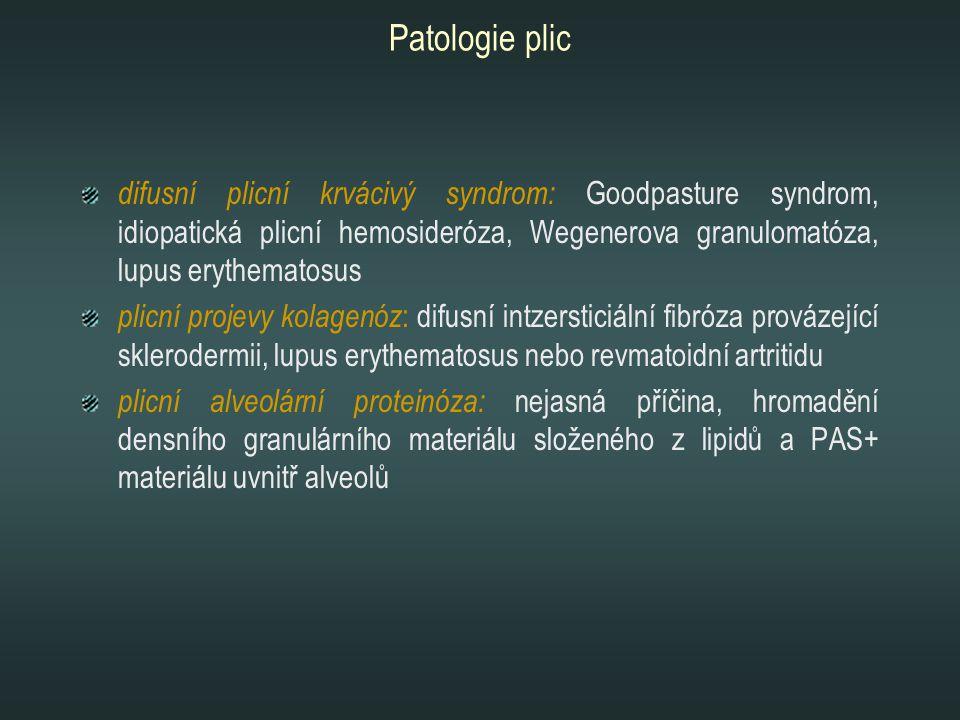 Patologie plic difusní plicní krvácivý syndrom: Goodpasture syndrom, idiopatická plicní hemosideróza, Wegenerova granulomatóza, lupus erythematosus pl