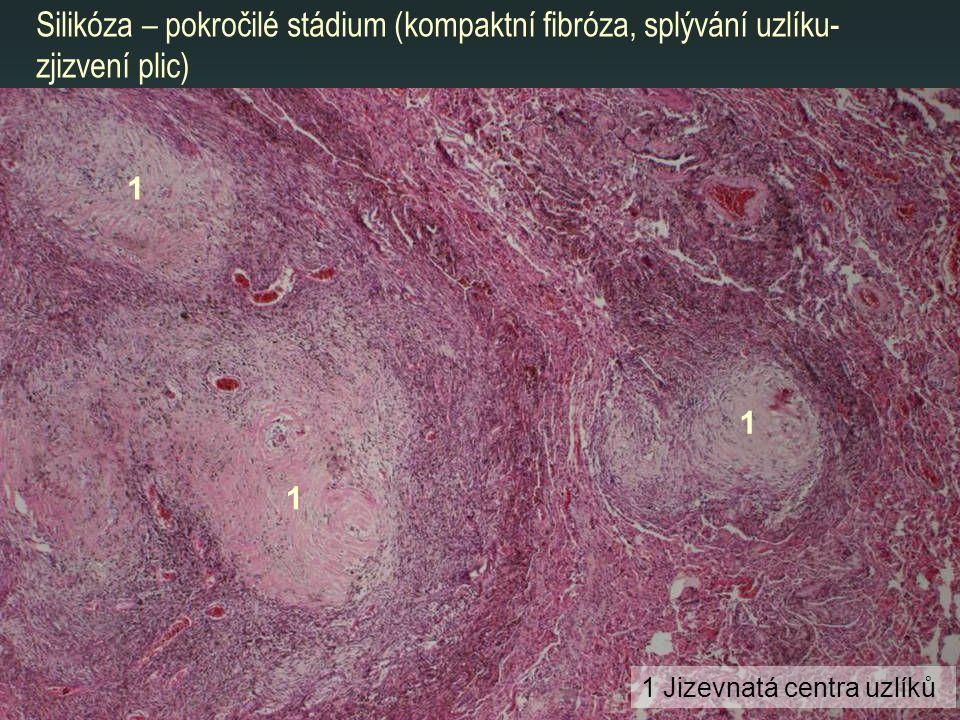 Silikóza – pokročilé stádium (kompaktní fibróza, splývání uzlíku- zjizvení plic) 1 1 1 1 Jizevnatá centra uzlíků