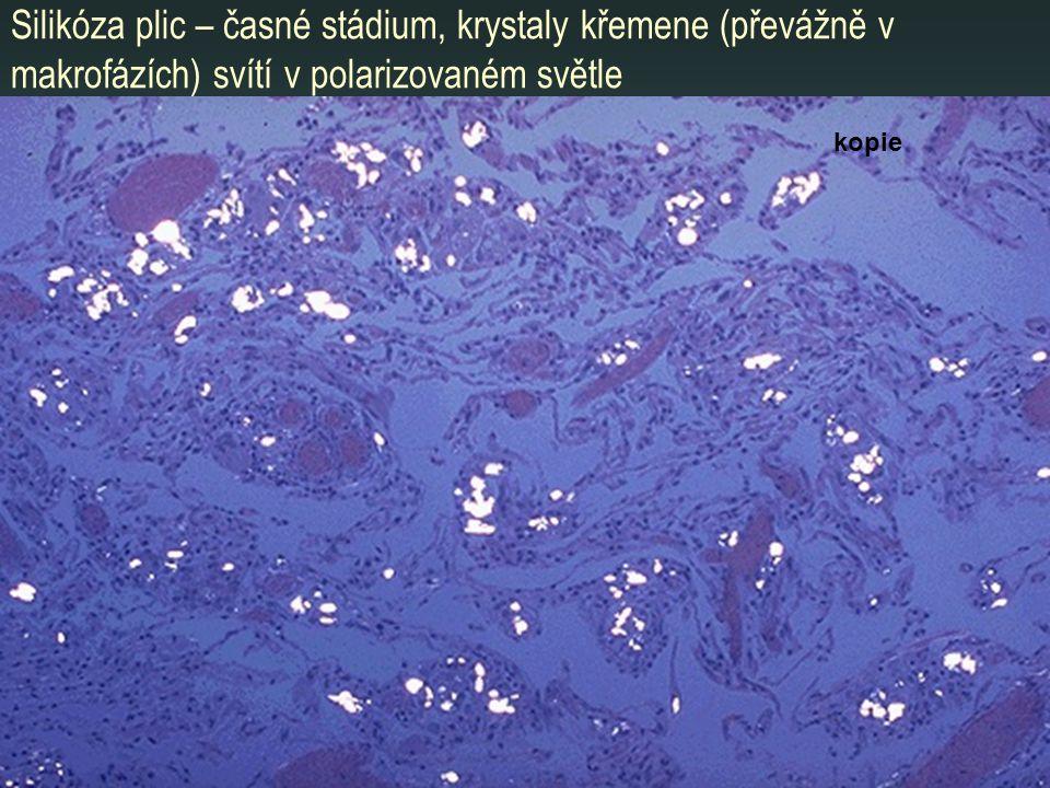 Silikóza plic – časné stádium, krystaly křemene (převážně v makrofázích) svítí v polarizovaném světle kopie