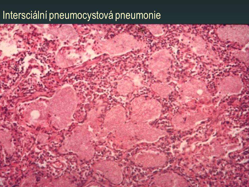 Intersciální pneumocystová pneumonie