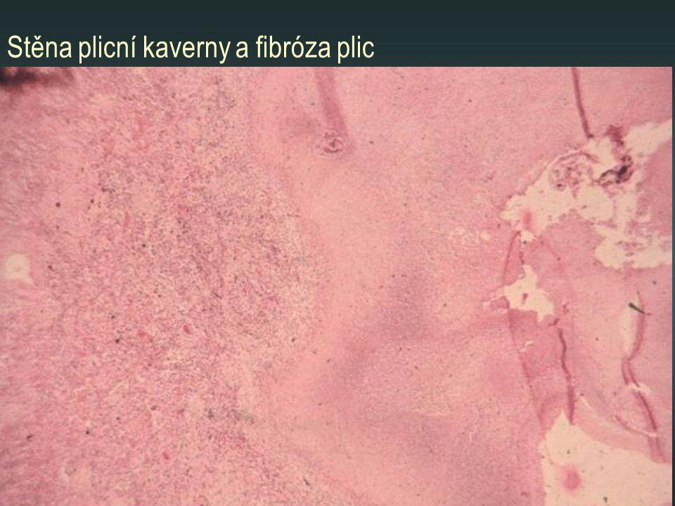 Stěna plicní kaverny a fibróza plic