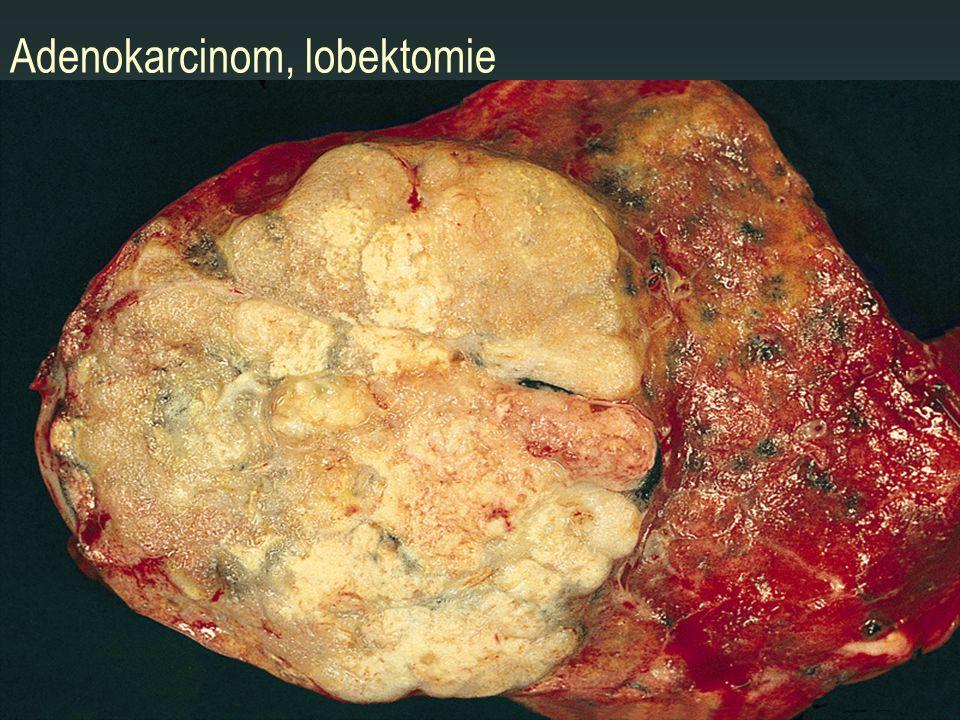 Adenokarcinom, lobektomie