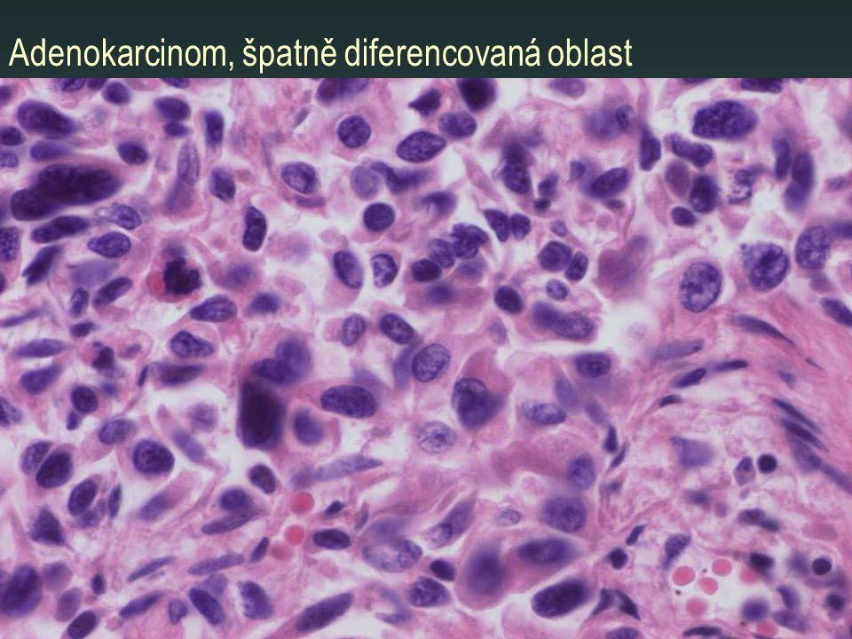 Adenokarcinom, špatně diferencovaná oblast