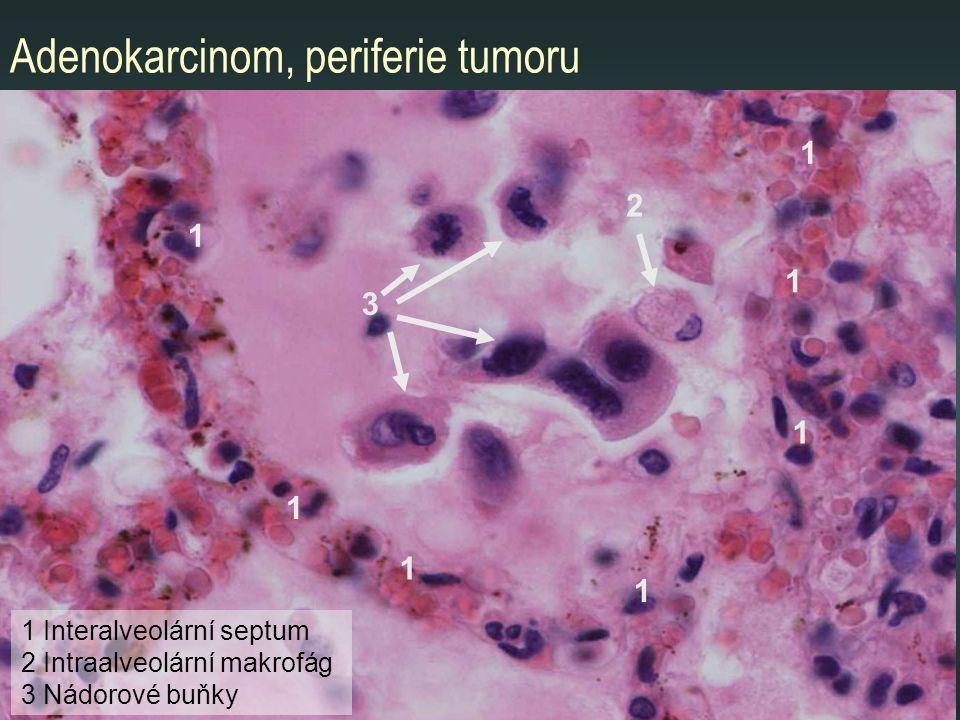 Adenokarcinom, periferie tumoru 1 1 2 1 1 Interalveolární septum 2 Intraalveolární makrofág 3 Nádorové buňky 1 1 1 1 3