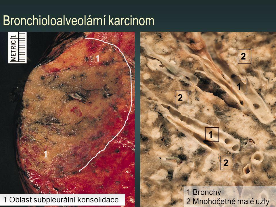 Bronchioloalveolární karcinom 1 2 1 1 1 2 2 1 Bronchy 2 Mnohočetné malé uzly 1 Oblast subpleurální konsolidace