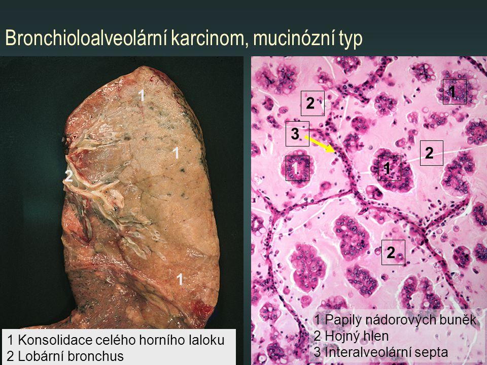 Bronchioloalveolární karcinom, mucinózní typ 1 1 1 2 1 11 1 Papily nádorových buněk 2 Hojný hlen 3 Interalveolární septa 1 Konsolidace celého horního