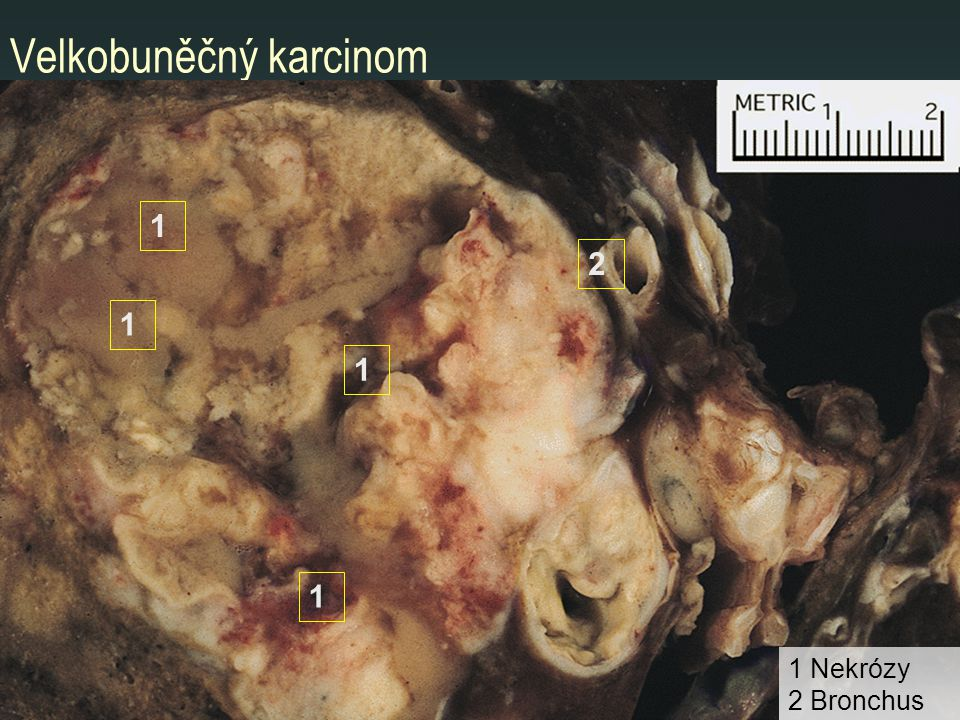 Velkobuněčný karcinom 1 1 1 1 1 Nekrózy 2 Bronchus 2